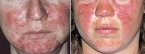 Lupus-lupus.jpg